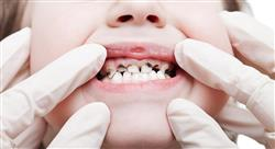 curso odontología pediátrica preventiva y caries dental