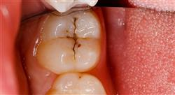 diplomado odontología pediátrica preventiva y caries dental
