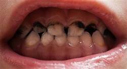 posgrado odontología pediátrica preventiva y caries dental