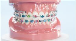 master ortodoncia y ortopedia dentofacial