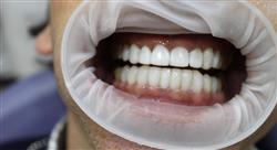 posgrado utilización de porcelanas en odontología