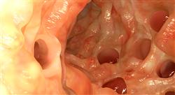 formacion nutrición en patologías del aparato digestivo para farmacéuticos