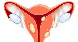 diplomado fitoterapia de las afecciones ginecológicas y del sistema urinario