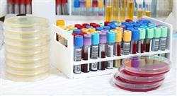 diplomado infecciones adquiridas en la comunidad para farmacéuticos