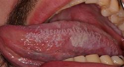 curso diagnostico tratamiento infeccion vih sida farmaceuticos
