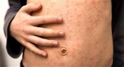 a prevencion tratamiento infecciones relacionadas