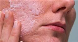 especializacion online dermatología y nutracéuticos en farmacia comunitaria