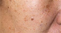 curso atención farmacéutica en patología frecuente en dermatología