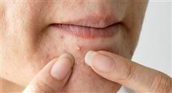 cursos microbiota de la piel para farmacia