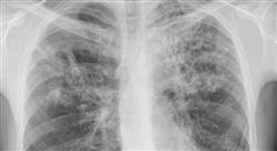 especializacion enfermería en urgencias vitales en atención primaria