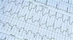 experto universitario enfermería en urgencias vitales en atención primaria