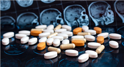 curso neuroanatomía y trastornos mentales para enfermería