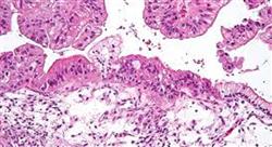 experto universitario tipos de tumores tratamiento oncológico y administración para enfermería