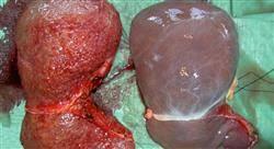 formacion enfermería en patología hepática y pancreática