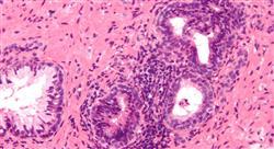 curso infecciones del tracto urinario genitales y de transmisión sexual en urgencias