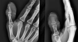 curso infecciones osteoarticulares piel y partes blandas en urgencias para enfermería