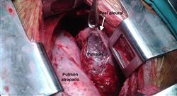 posgrado cuidados en el paciente trasplantado pulmonar para enfermería