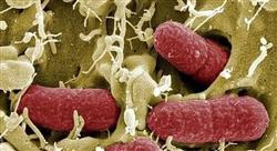 curso microbiota homeostasis intestinal enfermeria Tech Universidad