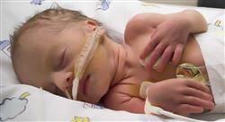 estudiar cuidados del recién nacido patológico para enfermería
