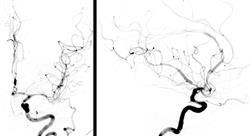 formacion ecografía clínica cerebral para enfermería