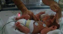 diplomado cuidados renales y hematológicos neonatales para enfermería