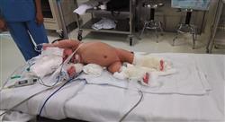 posgrado cuidados generales y quirúrgicos del recién nacido para enfermería