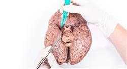 formacion daño cerebral adquirido en estados alterados de la conciencia para fisioterapia