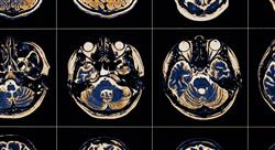 especializacion online abordaje fisioterápico del daño cerebral adquirido en geriátrica
