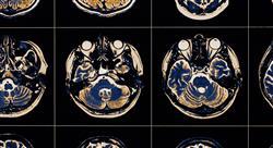 especializacion intervención fisioterápico del daño cerebral adquirido
