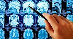 especializacion online intervención fisioterápico del daño cerebral adquirido