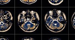 posgrado abordaje de las complicaciones en el daño cerebral adquirido para fisioterapia