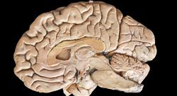 experto universitario neuropsicologia de la tercera edad