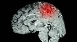experto universitario evaluación e intervención neuropsicológica