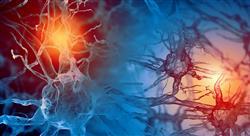 experto neuroanatomia trastornos Tech Universidad