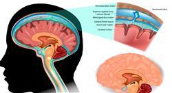 posgrado sedes neurológicas del comportamiento para docentes