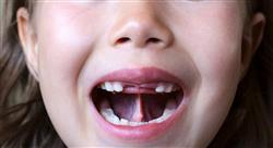 curso terapia orofacial y atención temprana