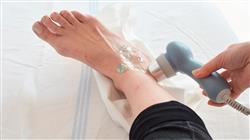 curso ultrasonoterapia laser actividad fisica deporte