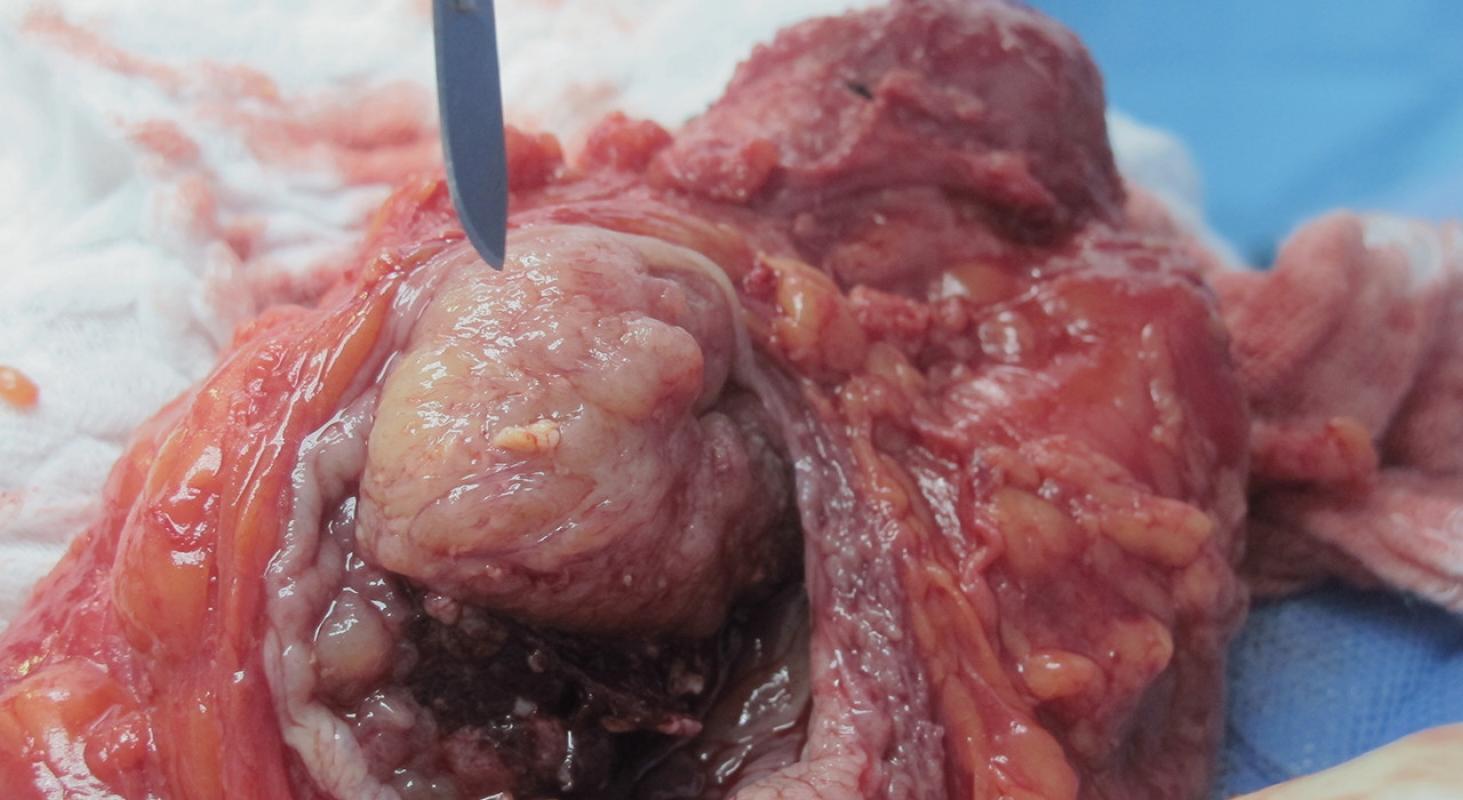 Urooncología